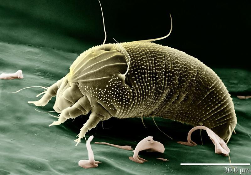 Milben: Entfernen und bekämpfen - Reinigungstipps für milbenfreies Wohnen