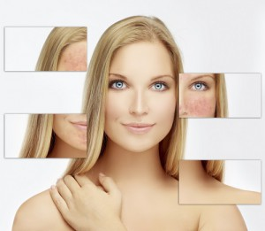 Rosazea – das hilft gegen die lästige Hautkrankheit